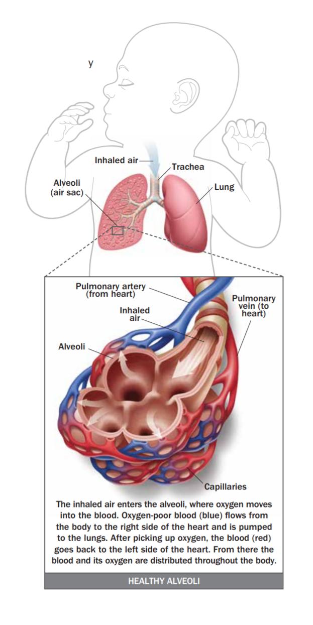 Hypoxic Respiratory Failure (HRF)
